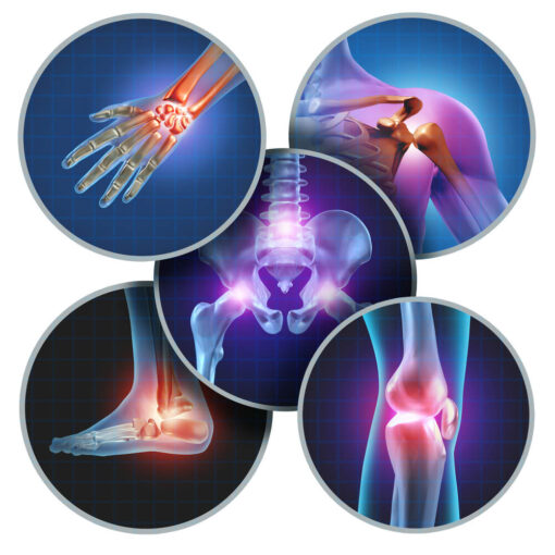 How do you know if you have arthritis in your knee